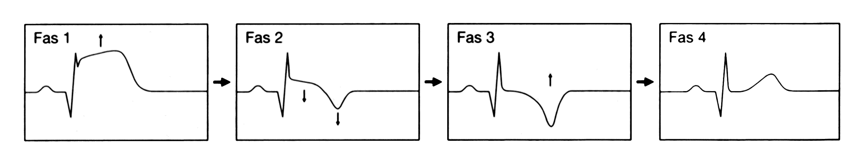behandling vid hjärtinfarkt